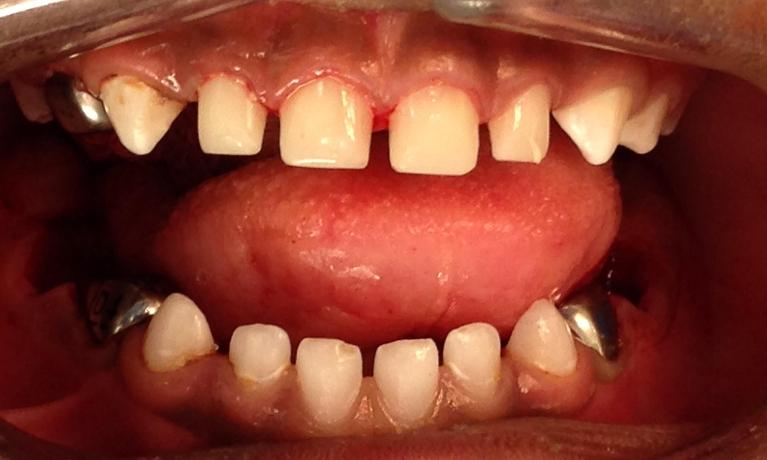 Pediatric-Dentistry-2-After-Image