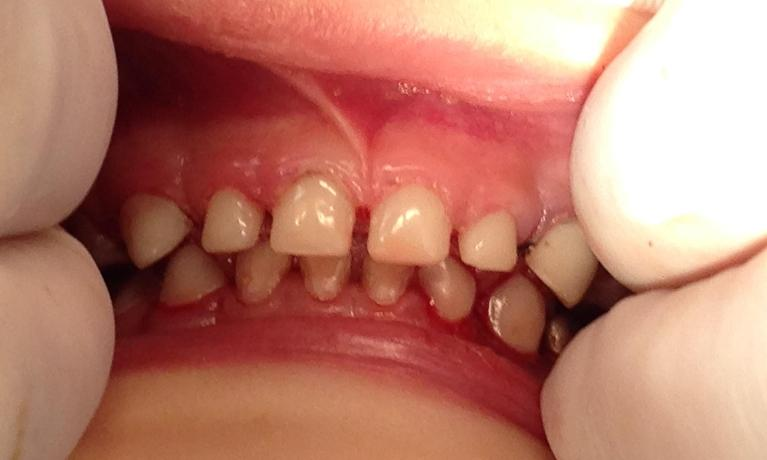Pediatric-Dentistry-After-Image