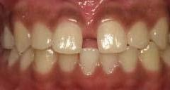 Diastema-Before-Image